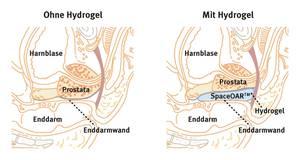 bestrahlung bei prostatakrebs nebenwirkungen