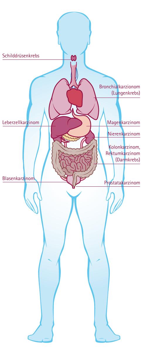 Brustkrebs letzte Stadien